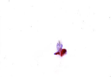 z_17-03-11_erzaehlunguebernichts